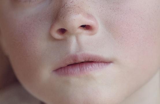 Epistassi il sangue da naso nei bambini le cause la for Interno naso