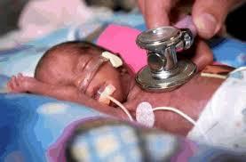 prematuro neonato
