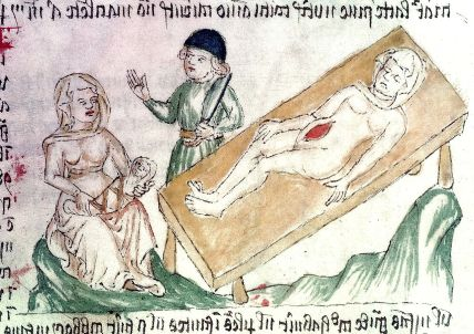 storia taglio cesareo