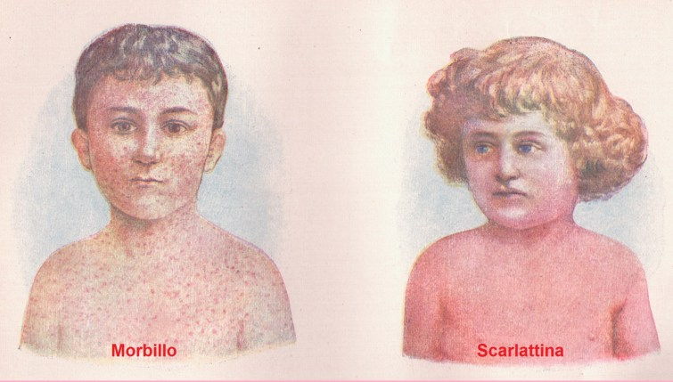 morbillo e scarlattina differenze