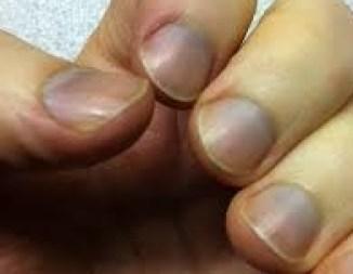 unghie bluastre