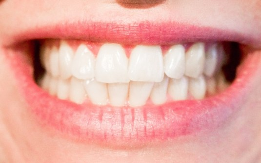 bocca-denti