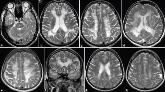 MRI of three different patiens from one family (mother, son, doughter). a) axial T2-weighted image shows characteristic changes in CADASIL - anterior temporal pole hyperintensities; b,d,g) axial T2-weighted images show periventricular hyperintensities; f) coronal T2-weighted image shows periventricular hyperintensities; c,e,h) axial T2-weighted images show hyperintensities in the deep white matter.