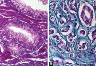 Mallory or Masson trichrome staining in A) benign prostate hyperplasia (x400) and B) prostate cancer