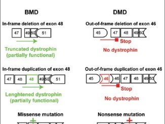 Examples of mutations of the DMD gene