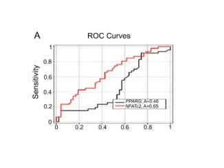 NFATC2 gene expression levels may help in colorectal cancer diagnosis