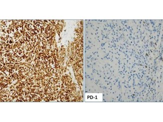 Positive PD-L1 (SP142 clone) IHC staining (2+, 85%) of a MSI-H colorectal tumor with concurrent BRAF V600E mutation; image taken at 20x magnification (Left image); Positive PD-1 (Cell Marque) IHC staining; image taken at 40x magnification (Right image).