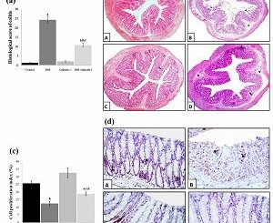 The role of galectin-1 in prevention and treatment of ulcerative colitis
