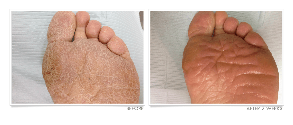 Dry, Cracked Feet Before and After TrueLipids