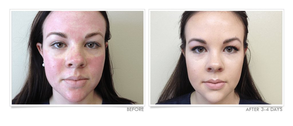 Micro-Needling Treatment Before & After