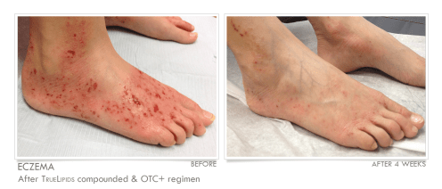 Eczema-Feet