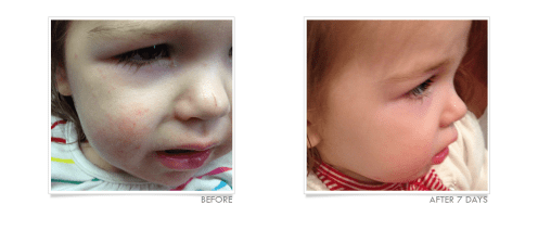 Allergic Contact Dermatitis Before and After Using TrueLipids