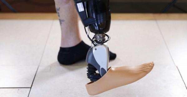 ossur_sensor_controlled_bionic_foot