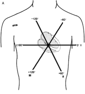 """""""Einthoven's triangle"""" were the first clinically used EKG leads. They were bipolar."""