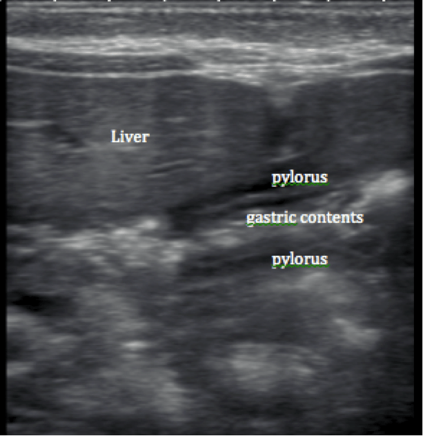 Right On Target  A Petite Peds Piece On Pyloric Stenosis