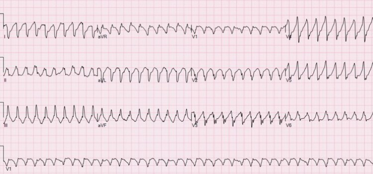 First-Line Treatment for Ventricular Tachycardia? What the Guidelines and  Evidence Say - County EM