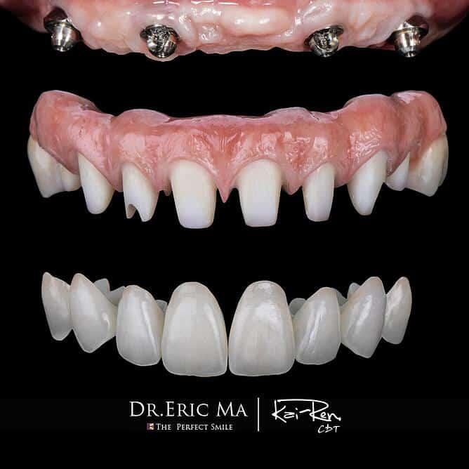 傳統植牙太辛苦?臺大第一名牙醫師推薦 All On 4 舒眠牙醫 | 豐采美學牙醫診所