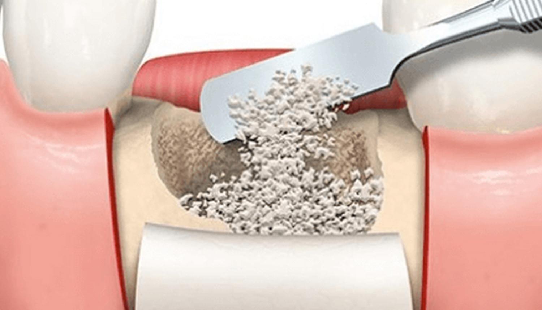 拔牙後或植牙前為什麼要補骨粉?骨粉價格和種類說明 | 豐采美學牙醫診所