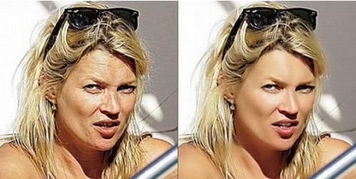 ...e Kate Moss ha le rughe e il viso segnato!