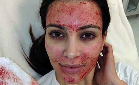 ClioMakeUp-vampire-lift-Kardashian