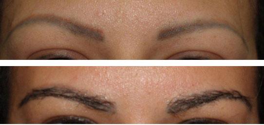 eyebrow-transplant