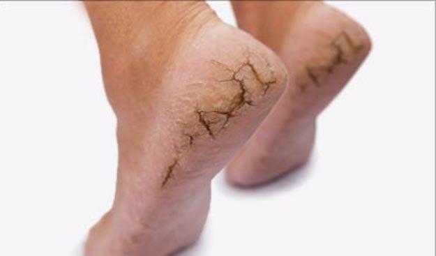 dry-skin-on-feet