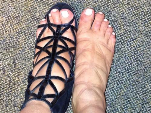 Kim-Kardashian-Swollen-Feet-500x375