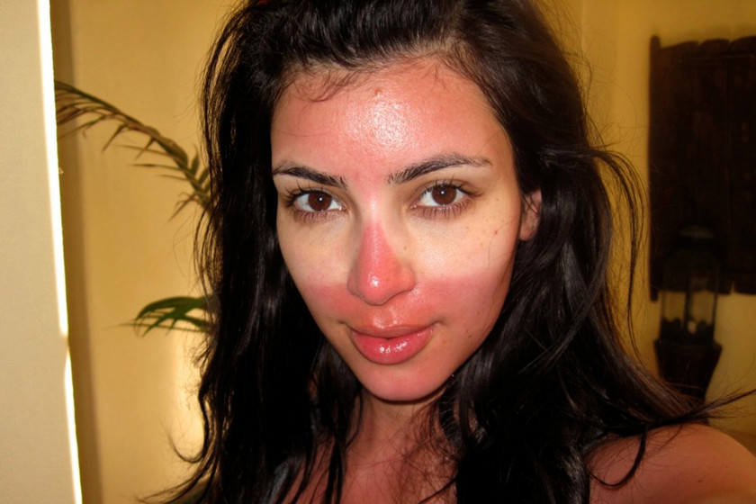 kim-kardashian-sunburned-sunglasses-mexico-2-141709