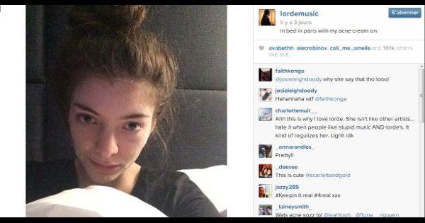 __171402-lorde-et-sa-creme-anti-acne-le-selfie-qui-fait-du-bien-aux-jeunes-600x315-1