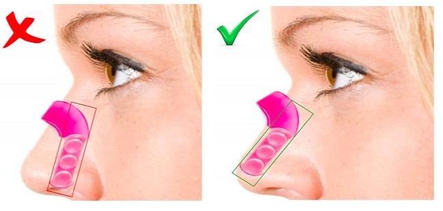 migliore qualità comprare in vendita alta moda Rhino Correct: correggere il naso senza chirurgia? Smalto ...