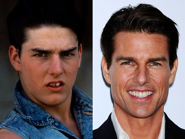 cliomakeup-denti-tom-cruise