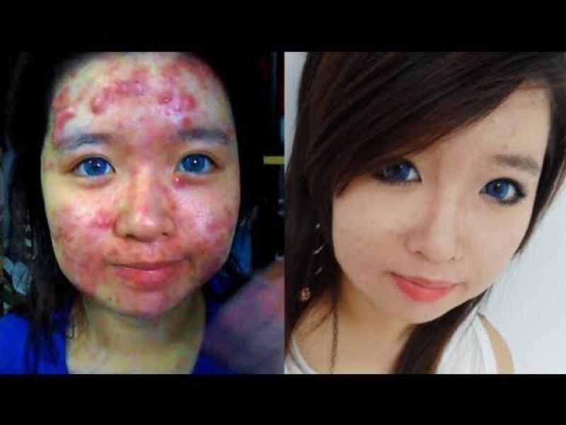 ClioMakeUp-blog-top-post-2015-piu-letti-fondotinta-grassa-acne