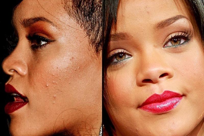 ClioMakeUp-guida-trucco-inizi-neofite-beginners-dove-si-comincia-pelle-grassa-Rihanna-Acne
