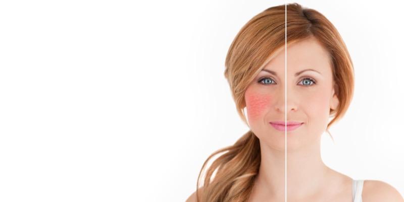 ClioMakeUp-pelle-secca-rimedi-cos-e-come-trattarla-curarla-guida-completa-pelle-che-tira