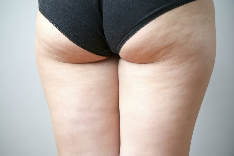 cliomakeup-cellulite-cosa-fare-cover