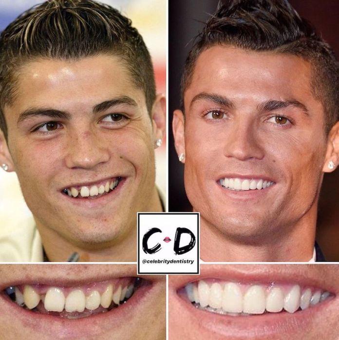 cliomakeup-denti-star-teamclio-1