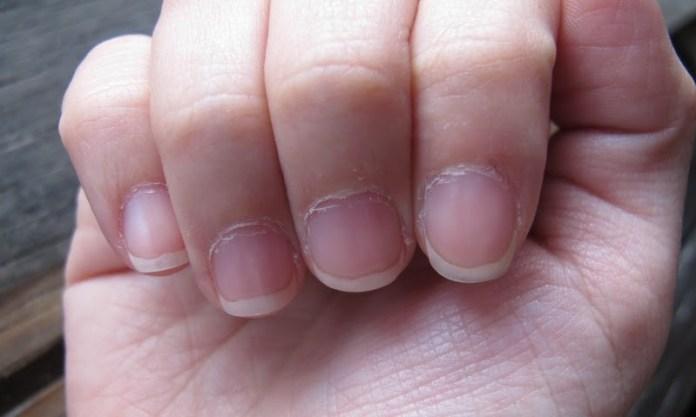 cliomakeup-rimedi-cuticole-mani-pellicine.jpg
