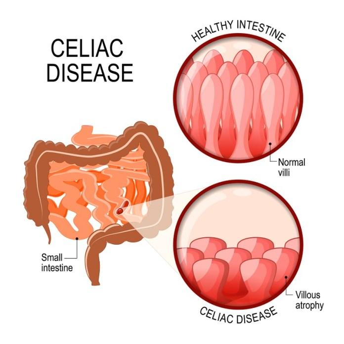 cliomakeup-eliminare-il-glutine-2-celiachia-intestino