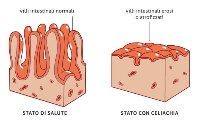 cliomakeup-glutine-fa-male-4-celiachia-intestino