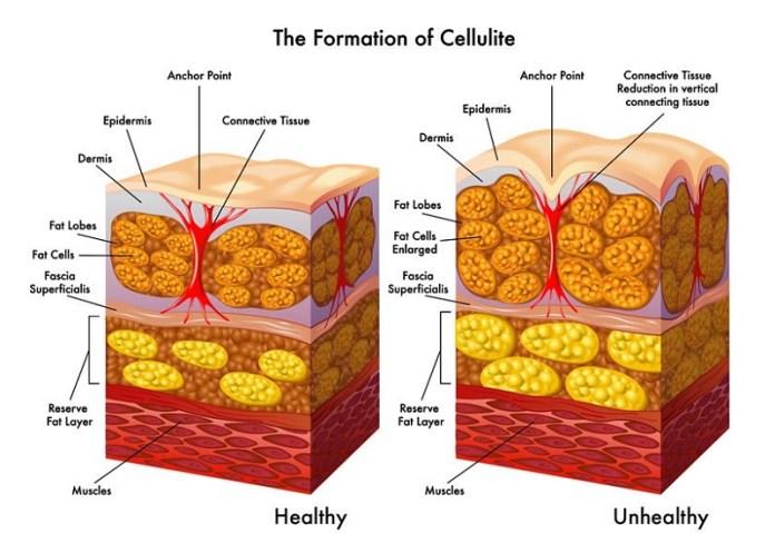ClioMakeUp-somatoline-cellulite-travail-3-Que sont la cellulite