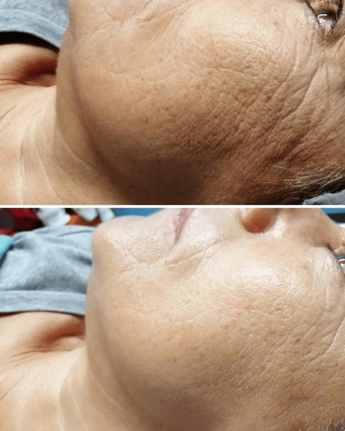 cliomakeup-ossigenoterapia-viso-capelli-4-prima-dopo