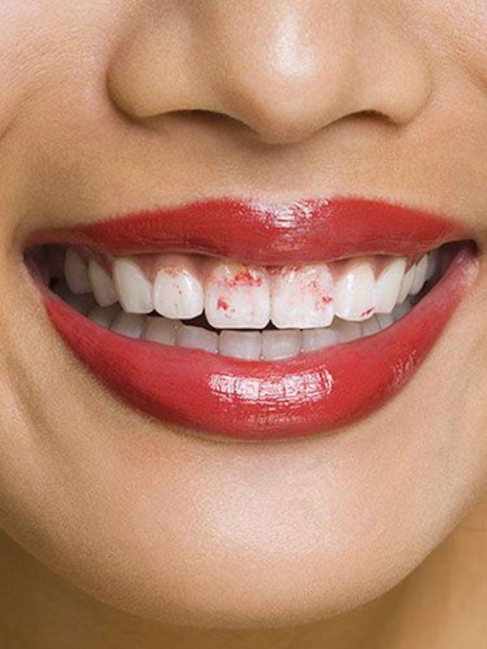 ClioMakeUp-come-evitare-rossetto-denti-6-denti-macchiati-rosso.jpg