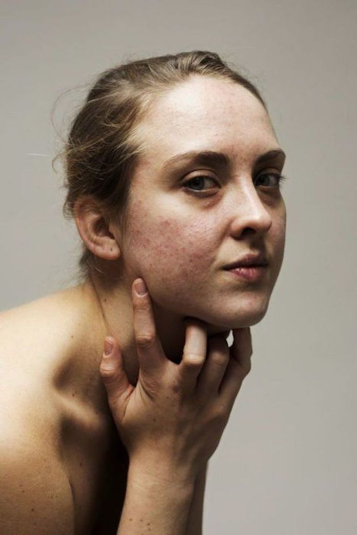 cliomakeup-effetto-rebound-acne-14