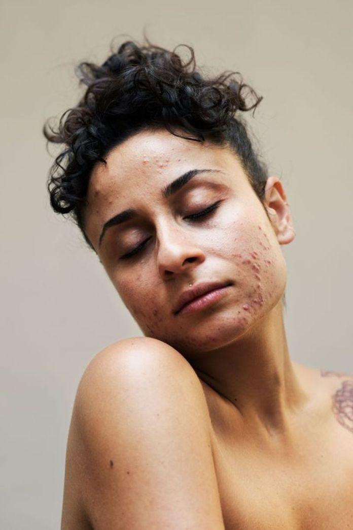 cliomakeup-effetto-rebound-acne-16