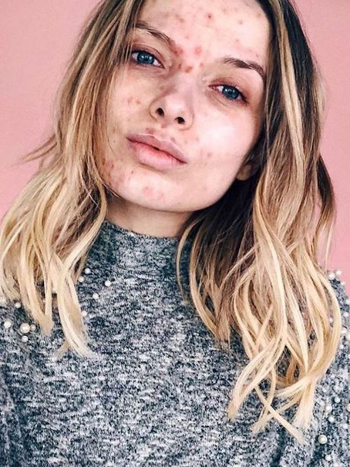 cliomakeup-effetto-rebound-acne-7