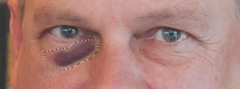 Maak een selectie met de patchtool om het blauwe oog heen.