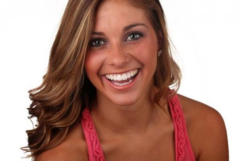 Enhance your smile with veneers