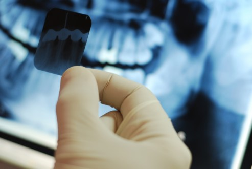 Why Dental X-rays are performed during your visit