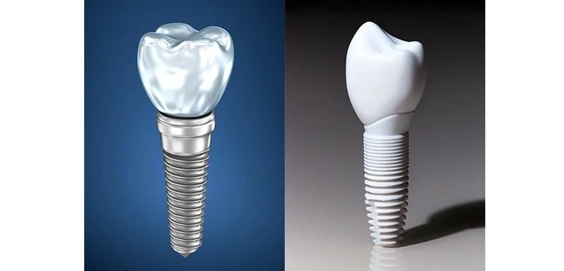 Implan Gigi Titanium vs Implan Gigi Zirconia- Global Estetik Dental Care