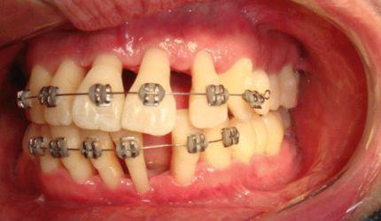 Ortodontia: a coragem é uma virtude dos ignorantes